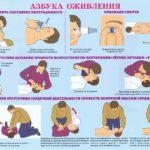 Первая помощь Первая помощь при закрытии дыхательных путей инородными предметами